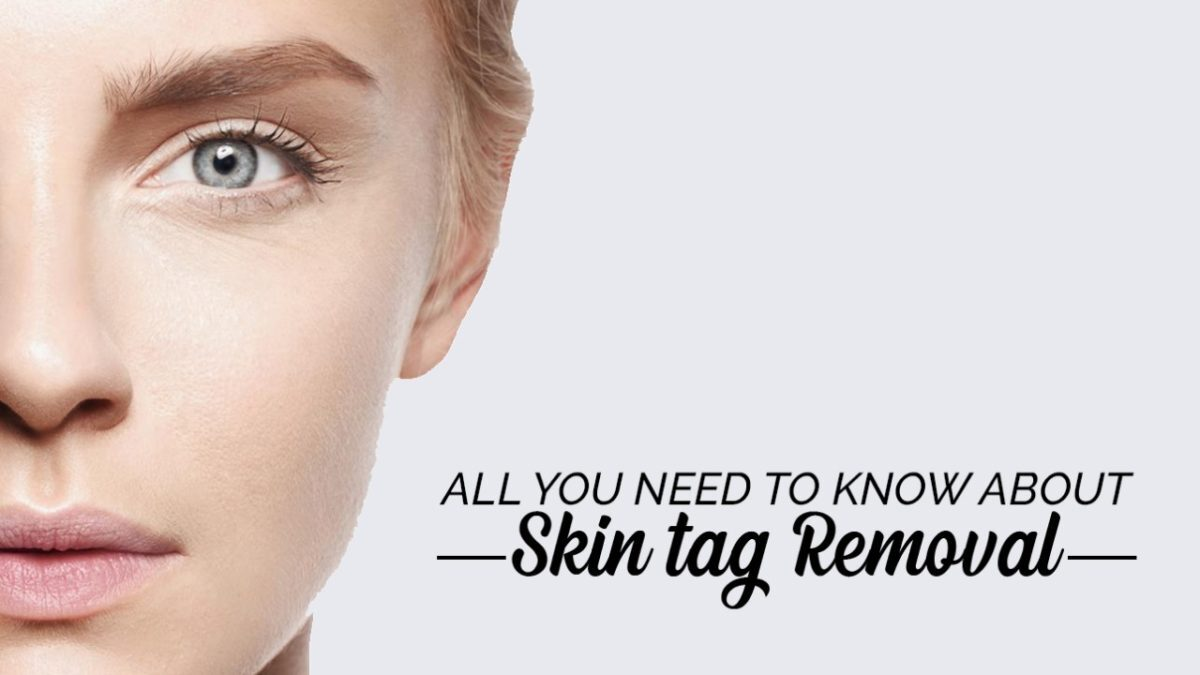 Skin Tag Removal treatment