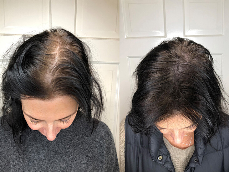 Hair Loss Diagnosis and Treatment
