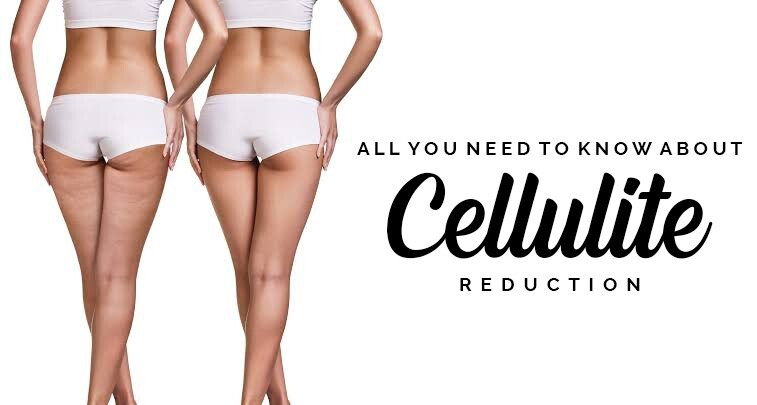 Cellulite Reduction Treatment