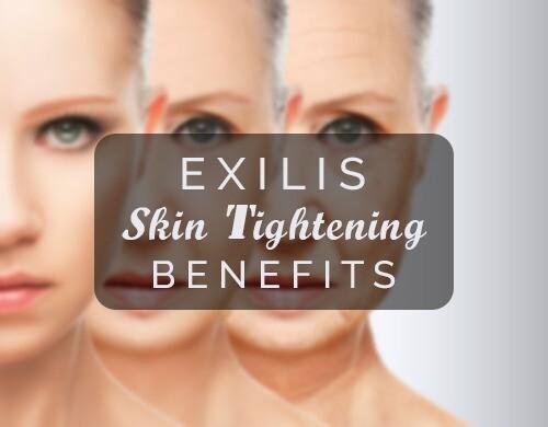 Exilis Skin Tightening Benefits