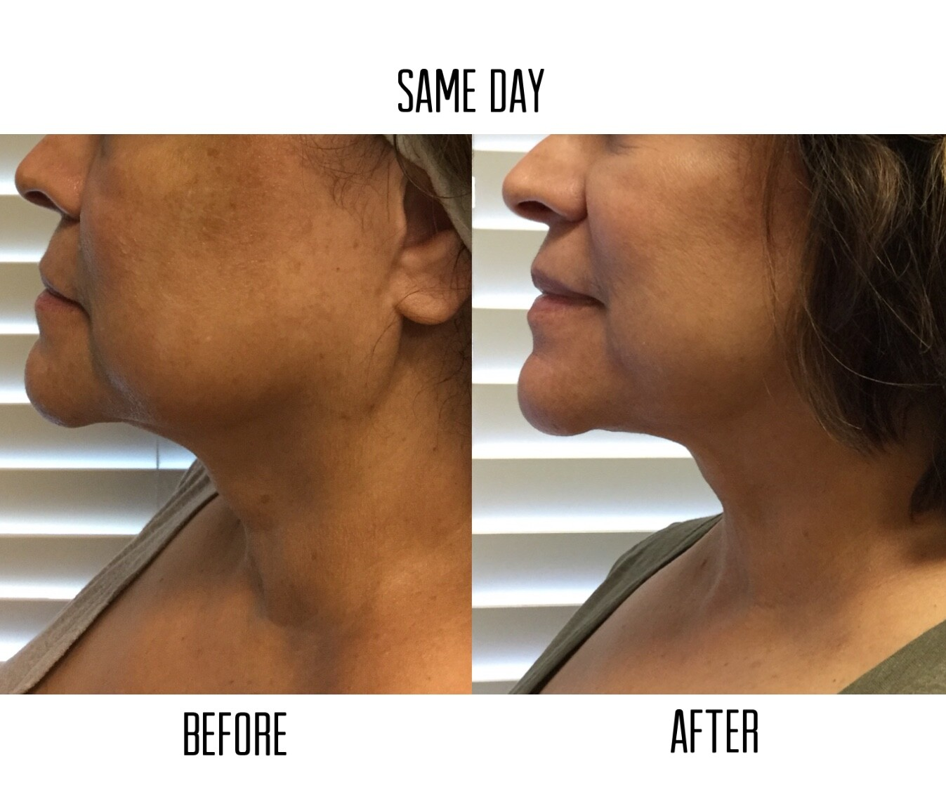 12 month results from ultrasound skin tightening in Las Vegas