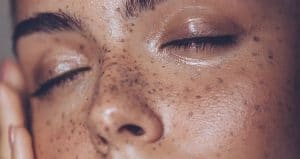 Skincare Tips for Oily Skin
