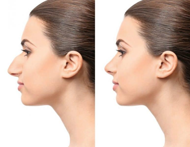 Things you need to know about Rhinoplasty