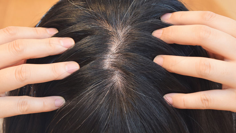 Try these 6 effective ways of hair rejuvenation