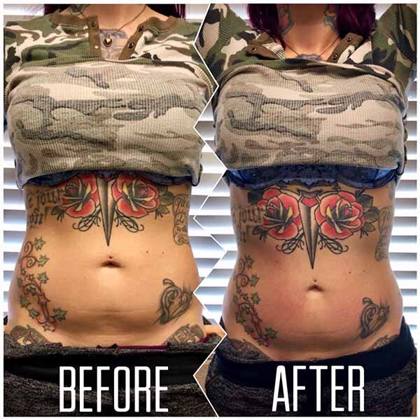 Before and after las vegas body contouring results