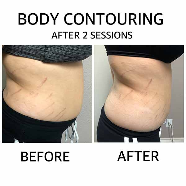 the results of 2 sessions of body contouring in las vegas