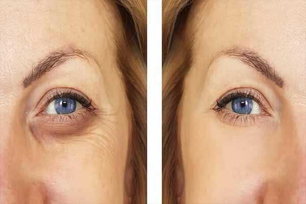 Before and after eye bag removal in Las Vegas, NV