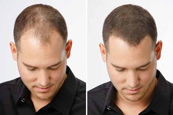 Hair Regrowth Membership In Las Vegas Vjazzy Wellness
