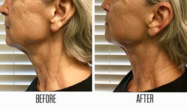 Results from ultrasound skin tightening in Las Vegas