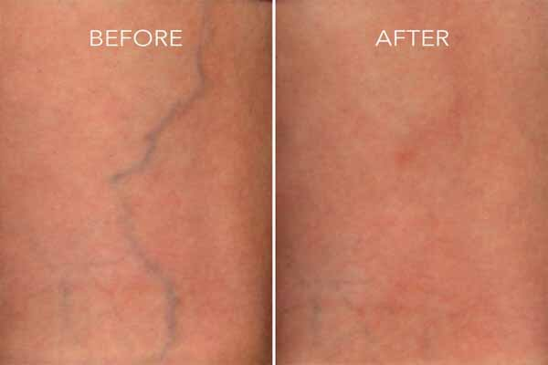 Before and after - remove your spider veins in Las Vegas