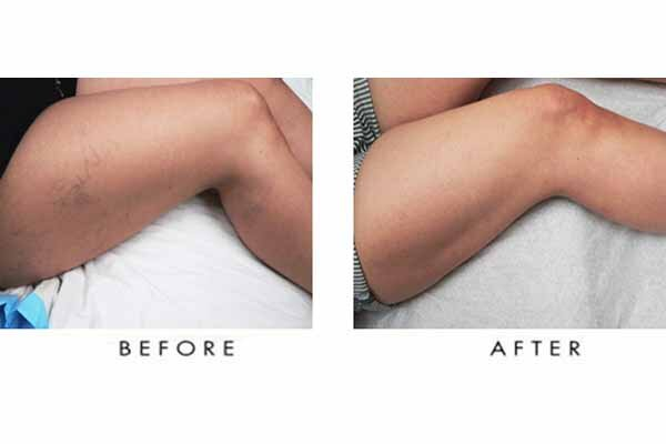 Get you spider veins removed in Las Vegas and look great!