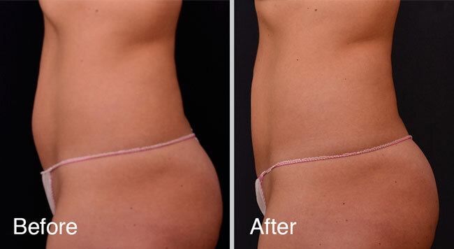 Vanquish fat reduction