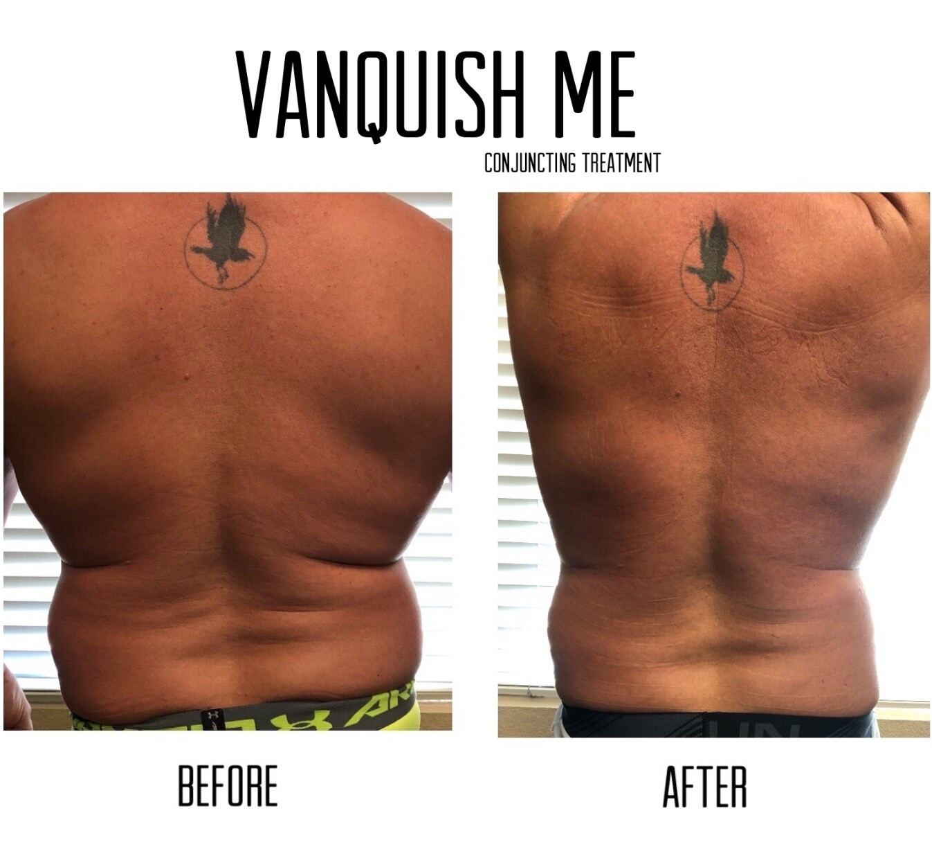 BTL Vanquish Me - example before and after treatment