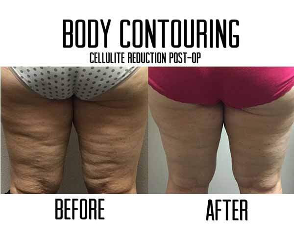 Cellulite reduction cost Las Vegas