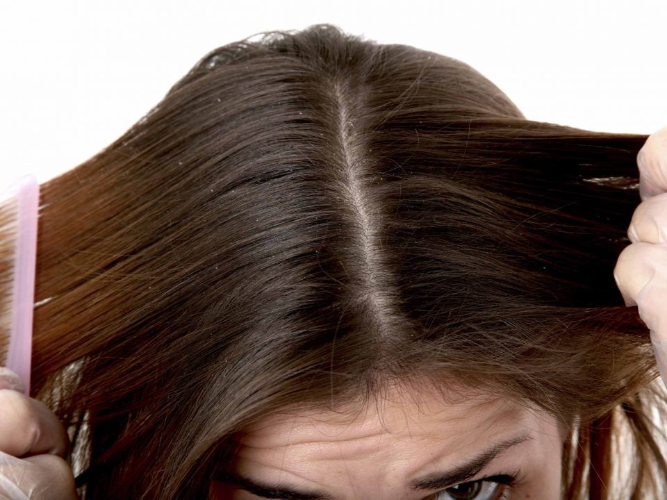 WHAT ARE THE CAUSES OF DANDRUFF
