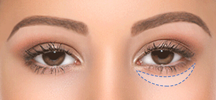 WHY EYE BAGS ARE FORMED