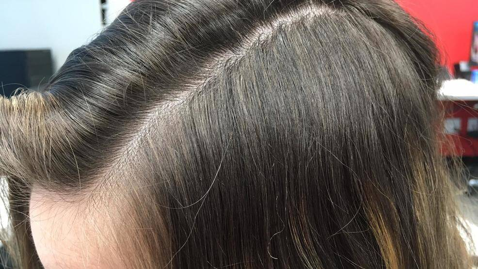 How to get rid of dry scalp