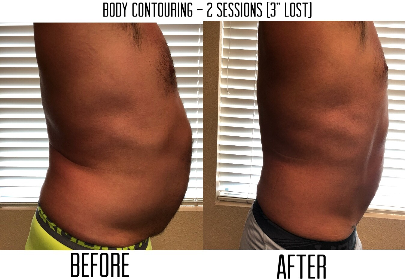 mens body contouring in Las Vegas Nevada before and after