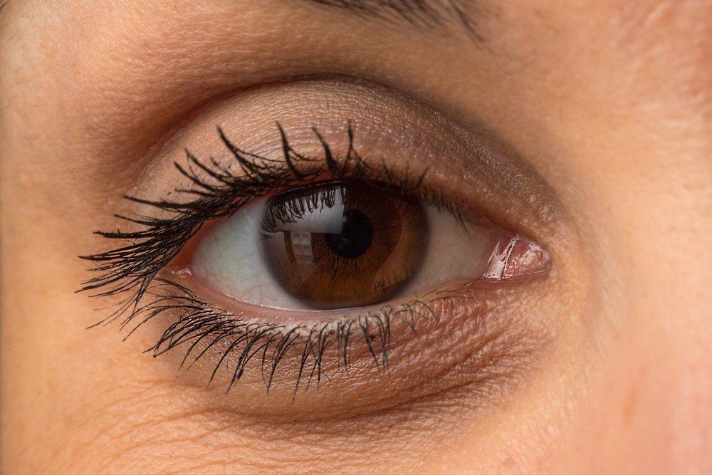 eye-bags