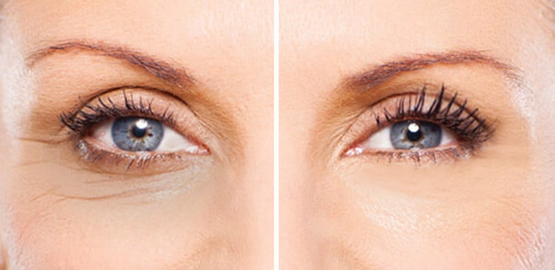 Tips to tighten the skin under the eyes