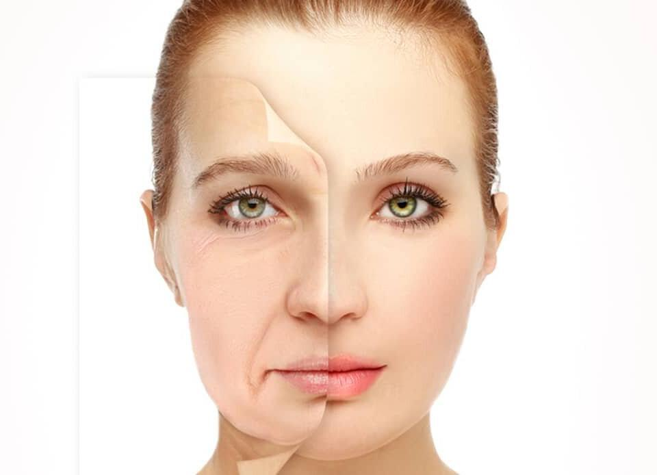 WHAT ARE THE ALTERNATIVES OF A FACELIFT