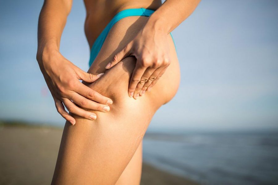 How to Get Rid of my Cellulite