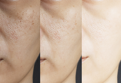 Melasma treatment offered by VJazzy Wellness